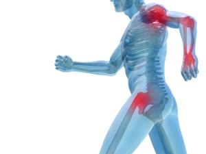 artrosi ictus ischemia riabilitazione crosystem