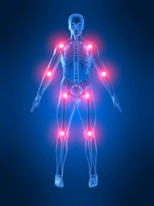 artrite corpo verticale