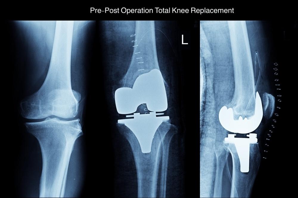 Artroprotesi riabilitazione e intervento