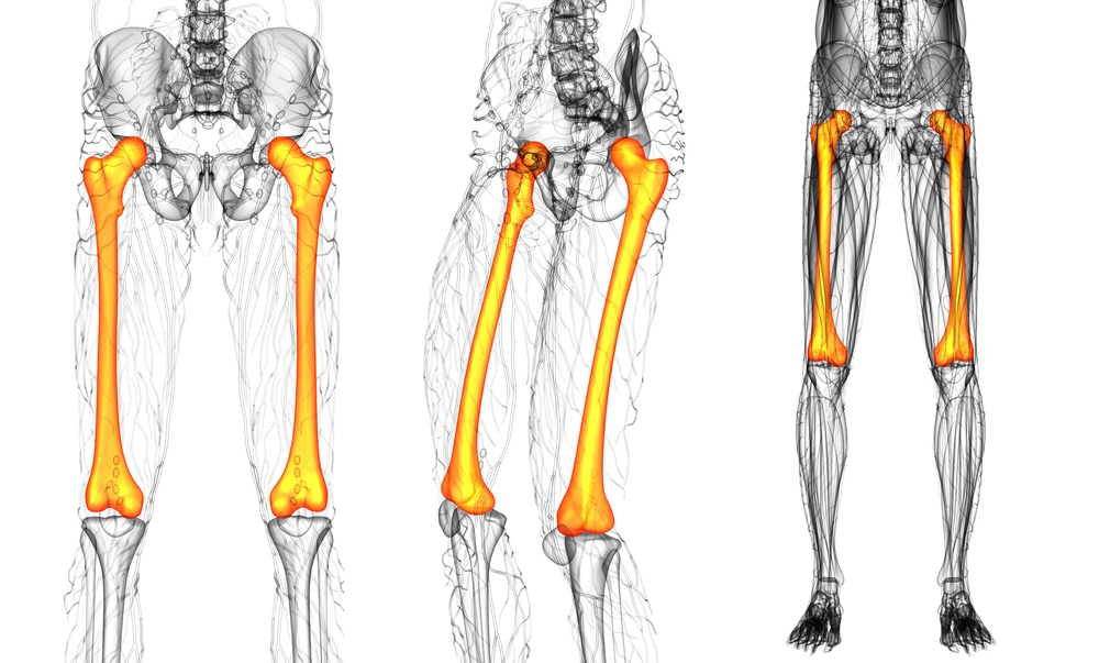 frattura femore anatomia