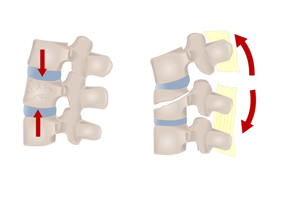 fratture vertebrali patologie
