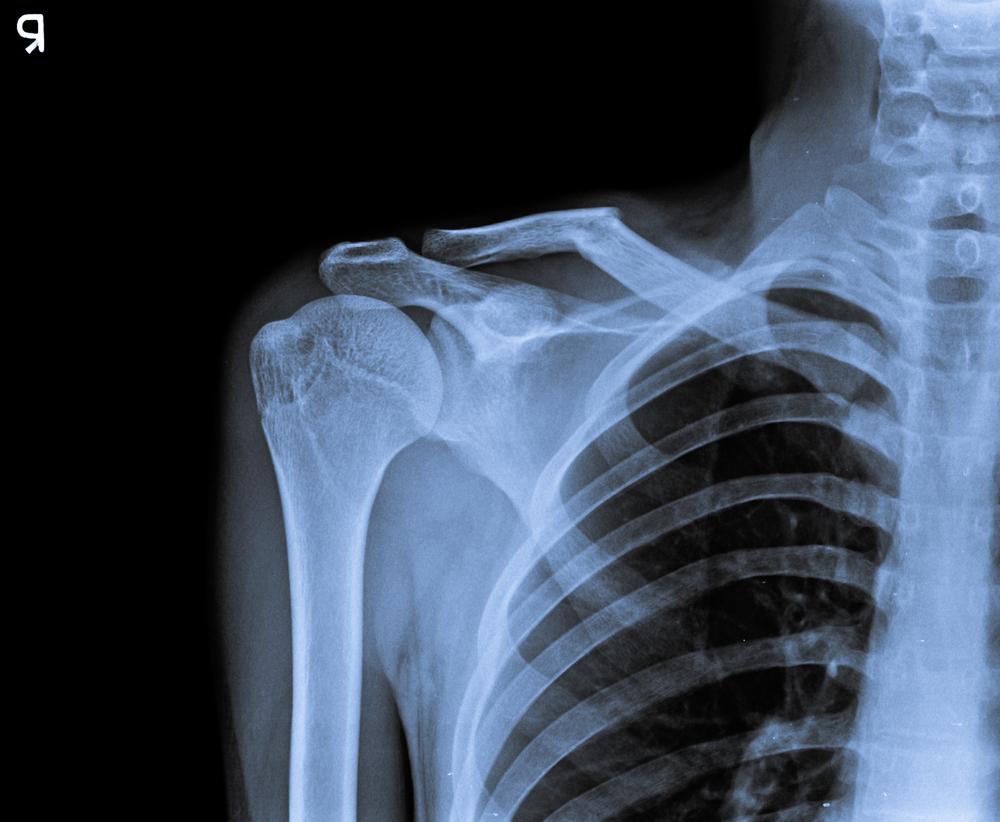 spalla congelata diagnosi