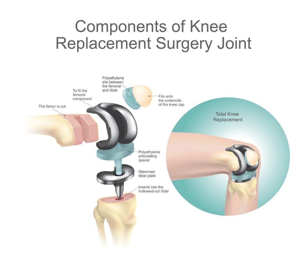 protesi ginocchio intervento