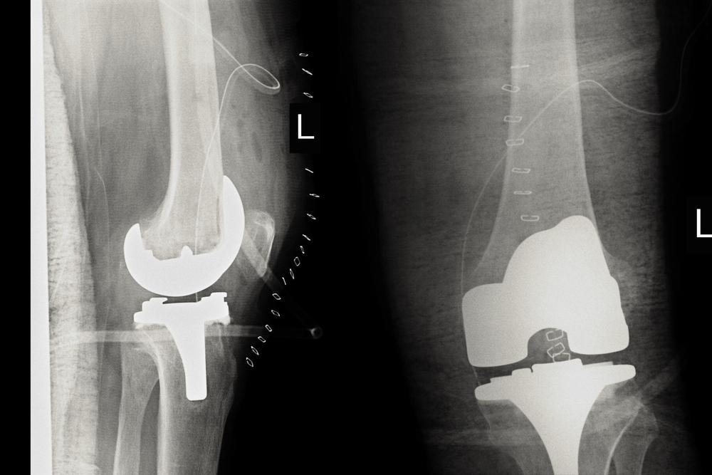 protesi ginocchio riabilitazione