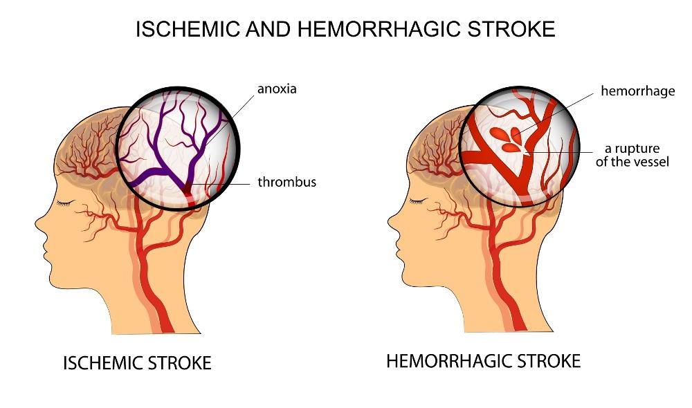 ictus cerebrale cause
