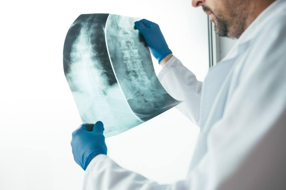 fratture vertebrali sintomi diagnosi