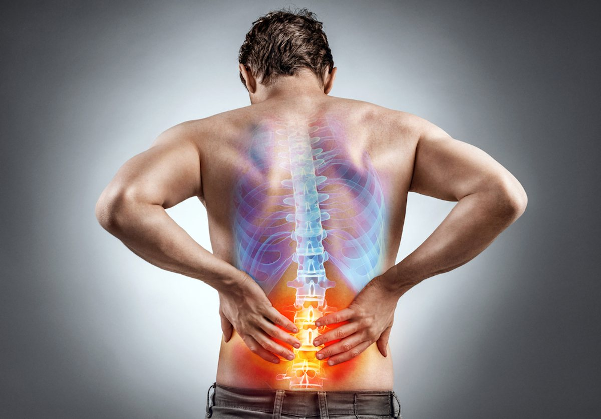 fratture vertebrali sintomi