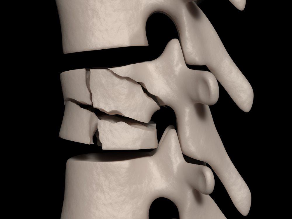fratture vertebrali tipologie sintomi