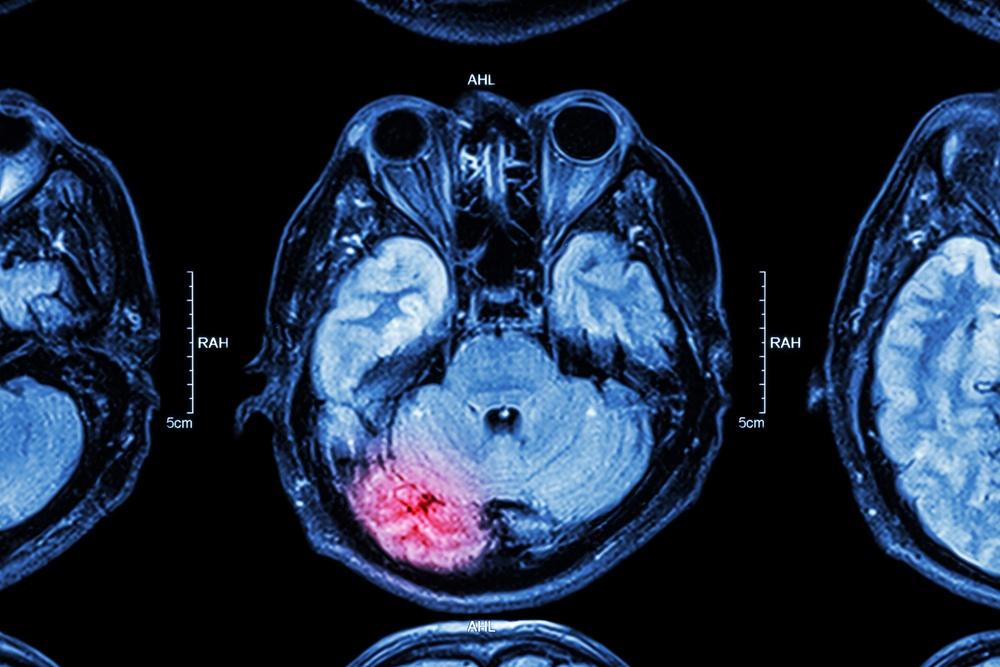 lesioni cerebrali conseguenze