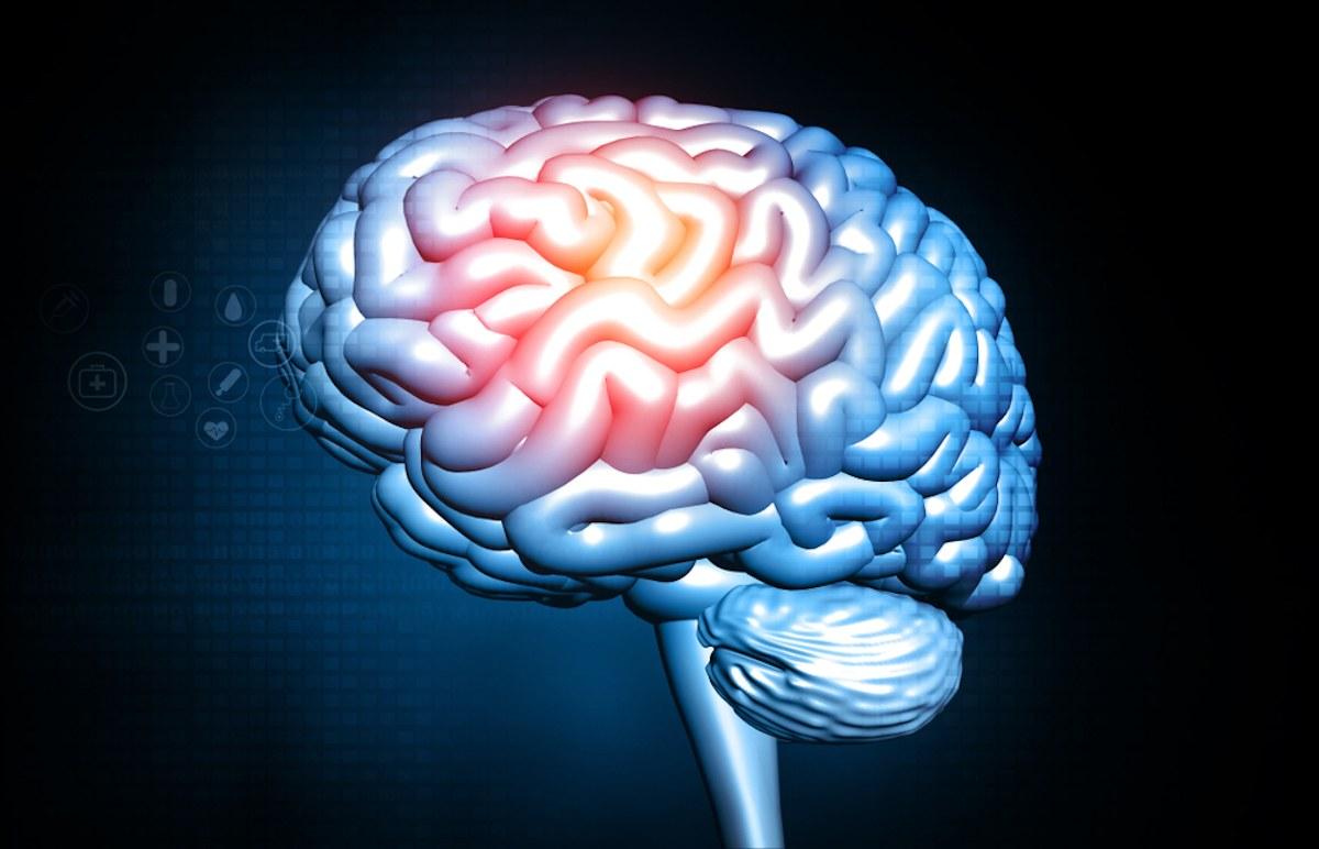 lesioni cerebrali