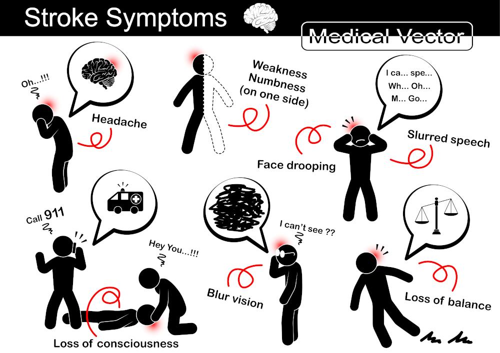 ictus sintomi