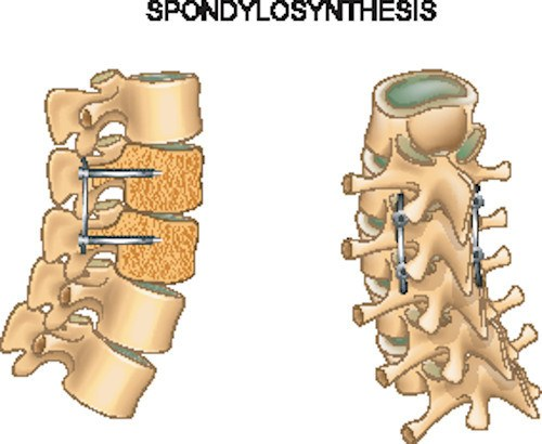 fratture vertebrali trattamento osteosintesi