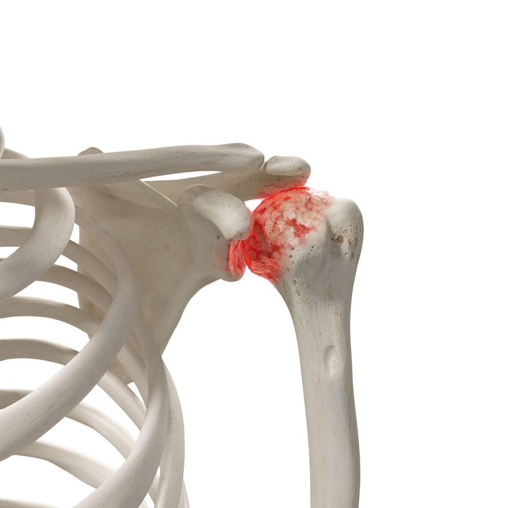 artrosi della spalla cause