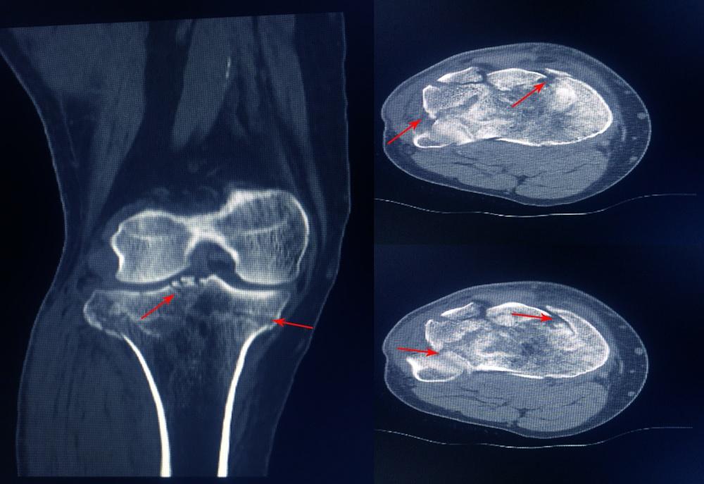 frattura piatto tibiale sintomi