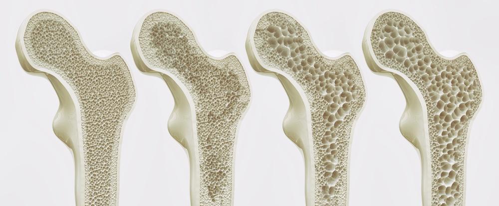 osteoporosi cause